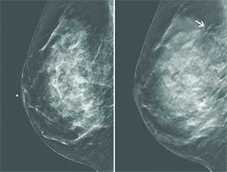 3d Mammography Tomosynthesis North Shore Medical Center